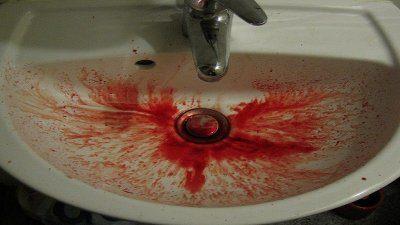 Причины рвоты с кровью. Медикаментозные и народные методы лечения